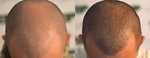 ARE YOU TIRED OF BEING BALD? Cornwall Ontario image 4