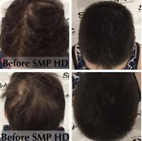 Scalp Mcropigmentation