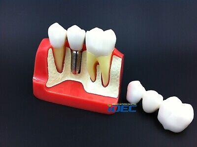 Dental Model Implant Model Analysis Crown Bridge Demonstration Teeth Model 1pc