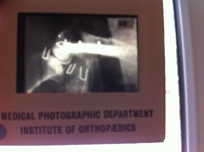 medical photographic department institute of orthopaedics  800+ slides 1970's for sale  Shipping to South Africa