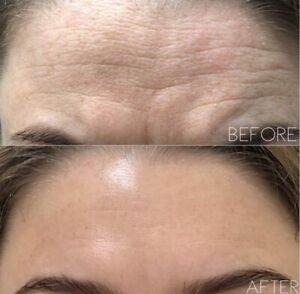 fillers in Melbourne Region, VIC | Health, Fitness & Beauty