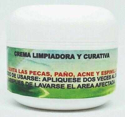 Crema Elimina Manchas Pecas Paño Marcas de Acne Espinillas Facial Cream Freckles