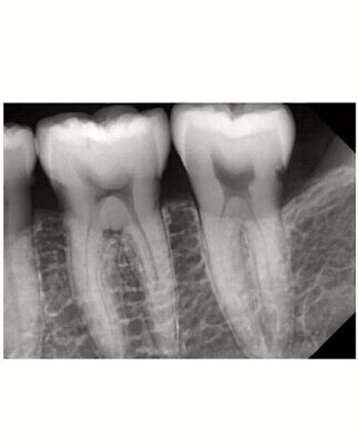 Dental Digital Xray Sensor Twain Compatibles.