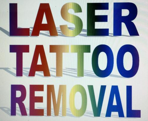 LASER+TATTOO+REMOVAL%2C+%C2%A31O+FOR+1000+SHOTS%2C+CHEAPEST+ANYWHERE%2C+WE+ARE+S80+POSTCODE