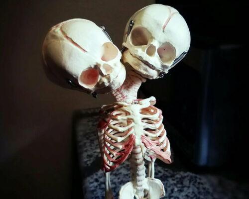 2 Headed Fetal Skeleton, Conjoined Twins Skeleton, 2 Head Baby, Oddities, Skulls