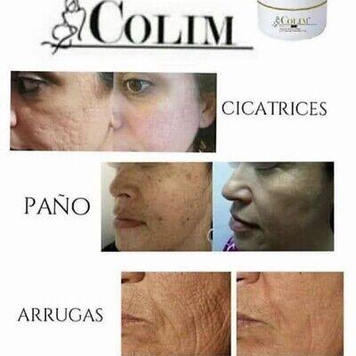 60g Colim Crema Con Colageno Elimina Cicatrices,Paño,estrías,manchas de Soy,acne