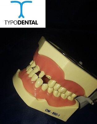 Dental Typodont Model 860 Crown Teeth Model Fits Columbia Brand Removable Teeth