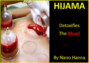 HIJAMA (WET CUPPING), THE ULTIMATE FOR PAIN RELIEF Yagoona Bankstown Area Preview