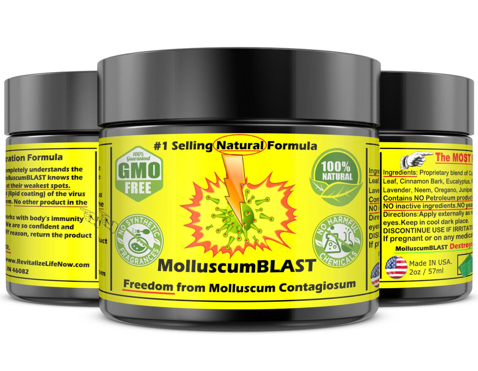 Molluscum Contagiosum Treatment Cream LARGE 60 ml Kids Adults 100% SAFE &NATURAL 4
