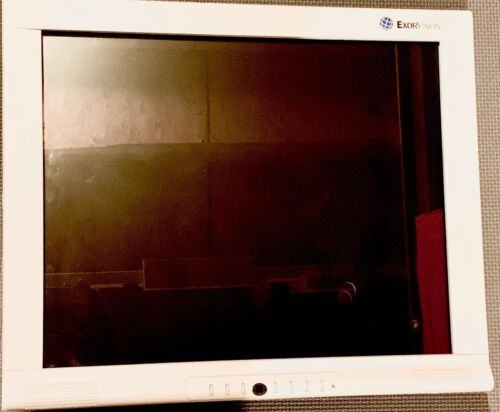 "ExorVison 18"" Dental Display Monitor"