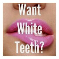 Teeth Whitening treatment right to your house or office