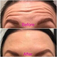 Botox 20/units for $99