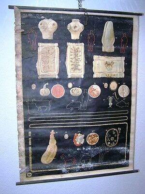 Old Chart Wall Card Roll Chart Decor Anatomy darmparasiten I