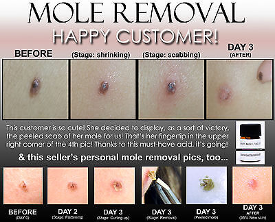 BEST 3 DAY PEEL DEEPEST GENTLE ACID for HPV WARTS, SKIN TAGS, MOLES, KELOID