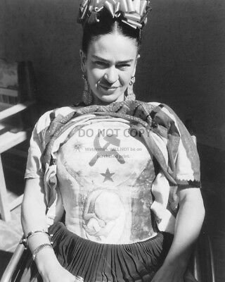 MEXICAN PAINTER FRIDA KAHLO IN A PLASTER CORSET - 8X10 PHOTO (BB-463)