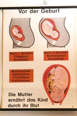 Schulwandkarte Role Map Wall Chart Enlightenment Birth Pregnancy 70s Vintage