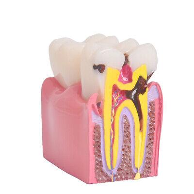 Dental Anatomy Education Teeth Model 6 Times Caries Comparation Study Model Diy
