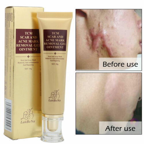 Face Body Scar Removal Cream Skin Repair Gel Skin Burn Spots