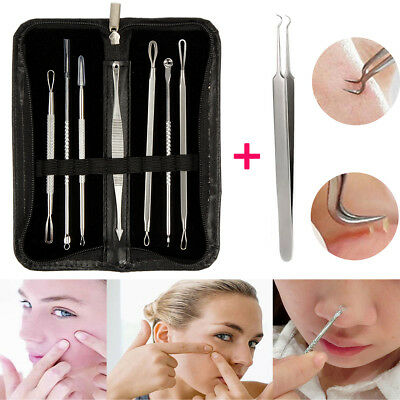 8PCS Blackhead Blemish Pimple Acne Extractor Remover Tool Kit Curved Tweezers