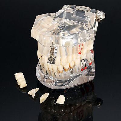 Dental Implant Disease Study Teaching Teeth Model With Restorationbridge Tooth