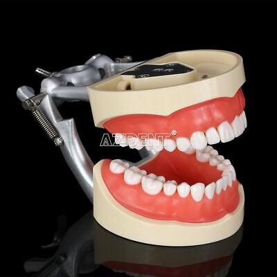 Kilgore Nissin 200 Type Dental Typodont Model With Removable Teeth 32pcs