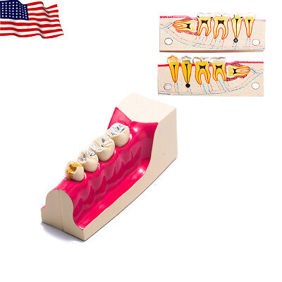 Easyinsmile Dental Molar Cross Section Teeth Model For Study Teach Demonstration