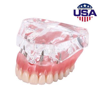 Dental Implant Teeth Teaching Model Demo Overdenture Restoration Clear Upper