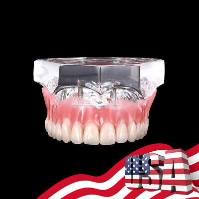 Dental Implant Teeth Model M6001x Demo Overdenture Restoration 4 Implants Upper