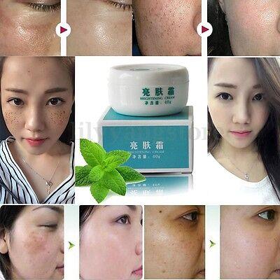 Suction Spot Cream Face Care Whitening Remove Freckle Dark Spots Scar Cream 40g