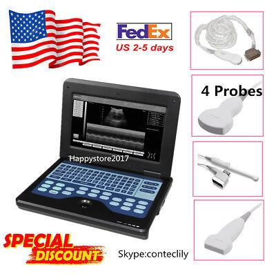 Ce 4 Probes Portable Ultrasound Scanner Laptop Machine 10.1 Cms600p2 Usbvideo