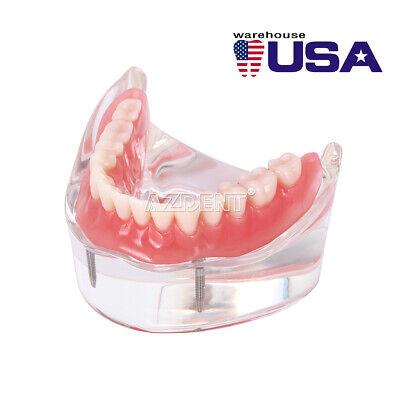 Implant Teeth Model Study Overdenture Restoration 2 Implants Mandibular Dental