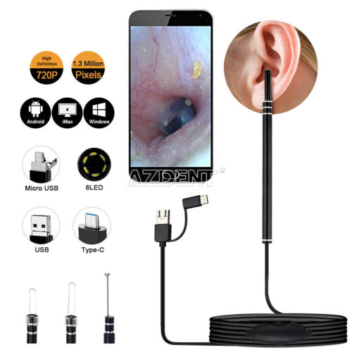 3 in 1 Android USB Earpick Wax Remover Ear Cleaner Scope Endoscope PC Camera