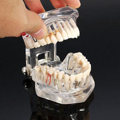 Dental Zahnarzt Zahntechnik Implantat Kronen Unterrichtendes Ausbildung Modell