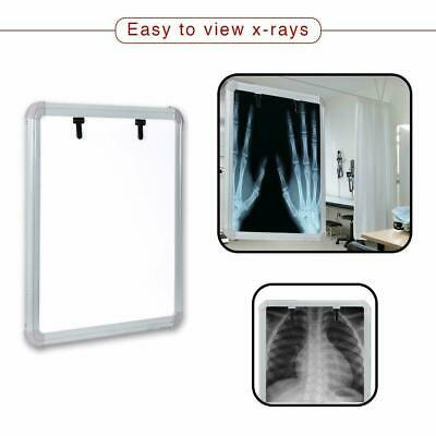 Led X-ray View Box With Automatic Film Activation Size-14x17 Inch Excellent
