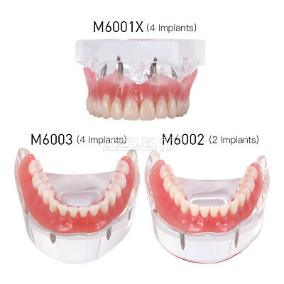 Dental Implant Teeth Model Demo Overdenture Restoration With 24 Implants Ul