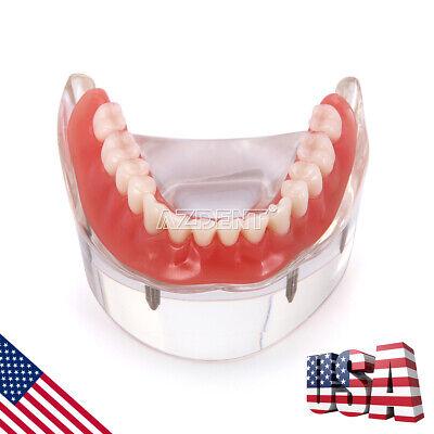 Dental Implant Teeth Model 4 Implants Overdenture Restoration Mandibular Lower