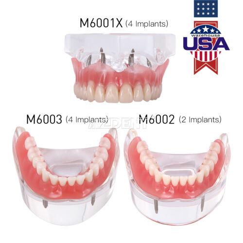 Dental Implant Teeth Model Demo Overdenture Restoration w/ 2 4 Implants Upp Low