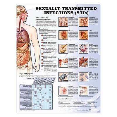 Sexually Transmitted Infections Anatomy Chart Briefly Explains Labels Body