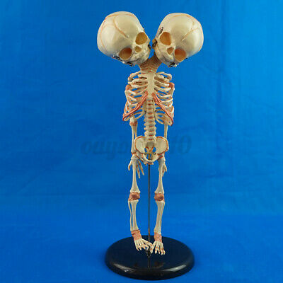 Double Head Infant Baby Skull Skeleton Research Model Anatomical Brain
