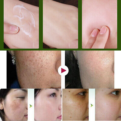 40g Aufhellungscreme gegen Sommersprossen Pigmentflecken Altersflecken
