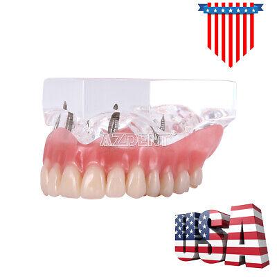Dental Implant Teeth Model Demo Overdenture Restoration With 4 Implants Upper