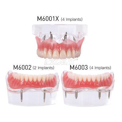 Dental Teeth Model Demo Overdenture Restoration
