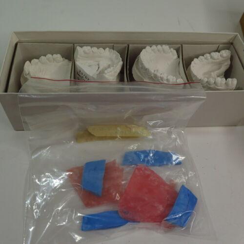 Dental Teeth Plaster Cast Mold - 2 Sets Before/After? Dental Oddity Impressions