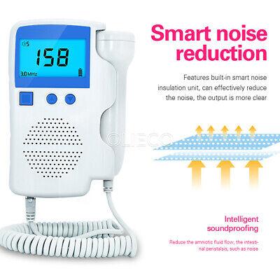 Fetal Dopplerbaby Heartbeat Monitorfetal Detector Ultrasonic 3.0mhz Probe