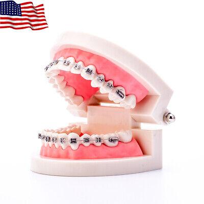 Easyinsmile Dental Orthodontic Standard Teeth Model With Metal Brackets Wires