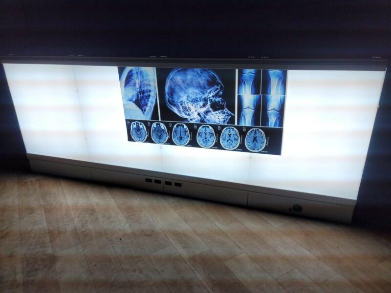 American Medical Sales X-Ray film viewer horizontal Illuminator light 704D
