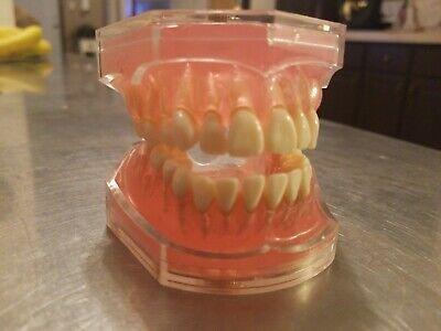 Dentoform Typdont Teeth Dental Students Training Model Sell Dentistry