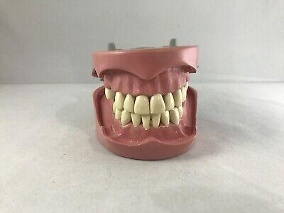 Columbia Dentoform Typodont