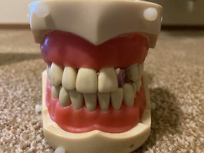 Columbia Dentoform P861 - Dental Typodont R-862