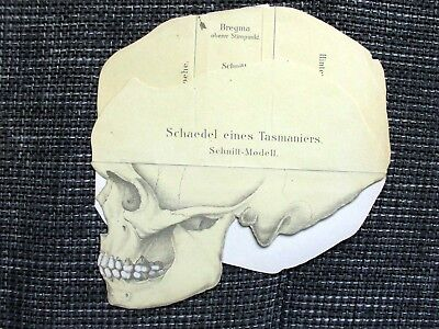 Schaedel One Tasmaniers - Schnitt-Modell Colour Printing of 1903 Tasmanian Skull